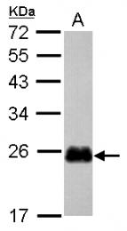 GTX117712 - Cysteine-rich protein 2