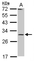 GTX117754 - RPP30