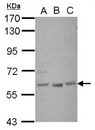 GTX117785 - GLIS1