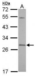GTX117823 - SNAP23