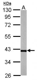 GTX117832 - RFFL / RNF189