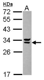 GTX117949 - Syntenin-2 / SDCBP2