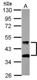 GTX118124 - DNAJA4