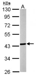 GTX118160 - Septin-3 (SEPT3)