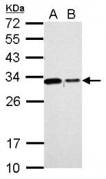 GTX118181 - CHMP2B