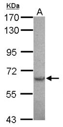 GTX118192 - SPTLC2