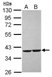 GTX118270 - Zeta-crystallin