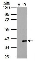 GTX118302 - ARPC1A / SOP2L