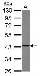 GTX118339 - Glutaredoxin-3 / GLRX3