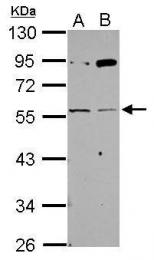 GTX118362 - Acetylcholine receptor gamma subunit