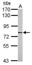 GTX118397 - CSRP2BP