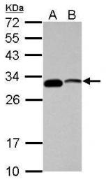 GTX118443 - CENP-P