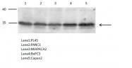 GTX118527 - Prostaglandin reductase 1