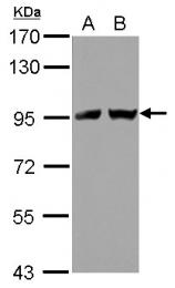 GTX118529 - Transportin-2 (TNPO2)