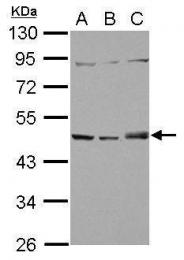 GTX118542 - Sorting nexin-5 (SNX5)