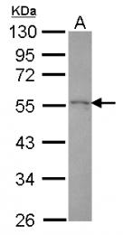 GTX118543 - Drebrin-like protein (DBNL)