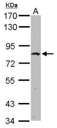 GTX118581 - ZNF326