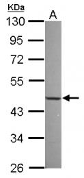 GTX118630 - NFIX