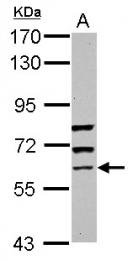 GTX118635 - GTP-binding protein 5 / GBP5