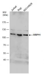 GTX118654 - WBP11