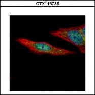 GTX118736 - TSG101