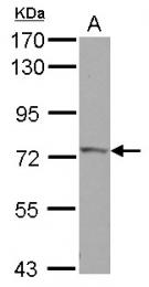 GTX118817 - IVNS1ABP