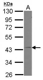 GTX118876 - G protein alpha 11 / GNA11