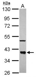 GTX118885 - CDC37L1