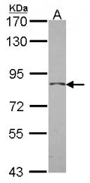 GTX118988 - Progesterone receptor