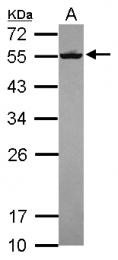 GTX119118 - Septin-8 (SEPT8)