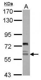 GTX119143 - REPIN1 / ZNF464