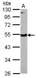 GTX119149 - Testican-3 / SPOCK3