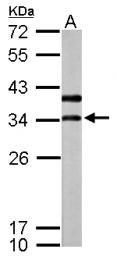 GTX119155 - ATP6V1D