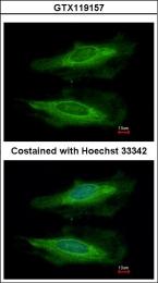 GTX119157 - HECA / HDC