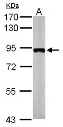 GTX119163 - MTMR12
