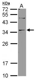 GTX119205 - Deoxyribonuclease-2-beta