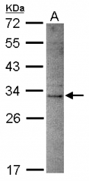 GTX119206 - Deoxyribonuclease-2-beta