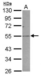 GTX119233 - PLVAP