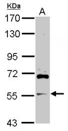 GTX119238 - ARFGAP2 / ZNF289