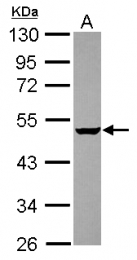GTX119261 - GABPB2