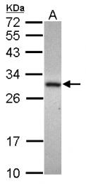 GTX119264 - ADHFE1 / HMFT2263