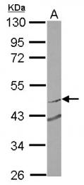 GTX119302 - RNF180