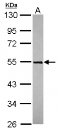 GTX119323 - TRIM49  / RNF18