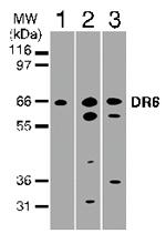 GTX11933 - TNFRSF21 / Death receptor 6 (DR6)