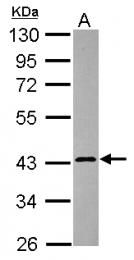 GTX119406 - Calreticulin-3