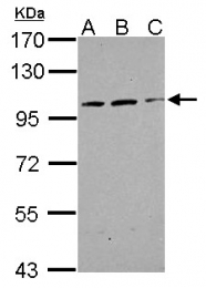 GTX119423 - TRAK2 / ALS2CR3