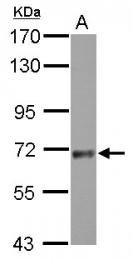 GTX119426 - Sorting nexin-18 (SNX18)
