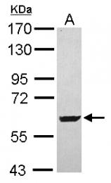 GTX119451 - SARS2 / SerRSmt
