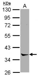 GTX119470 - Annexin A8 / ANXA8