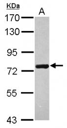 GTX119472 - HSPA6